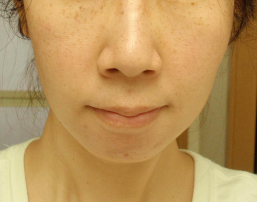8週間目 お肌画像 Triaスキンケアレーザー美顔器 (7)