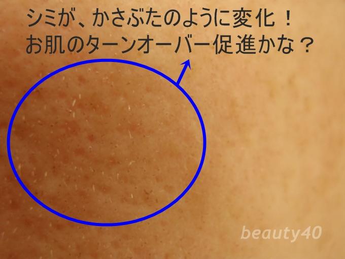 カサブタ画像 8週間目 Triaスキンケアレーザー美顔器 (1)-2