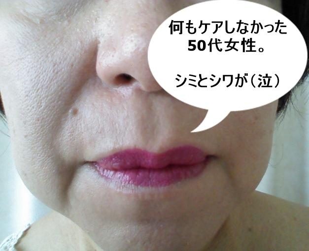 シミ・シワ 50代女性 (2)1